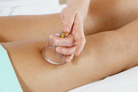 masáž baňkami